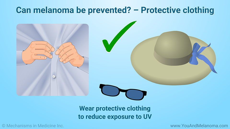 Can melanoma be prevented? – Protective clothing