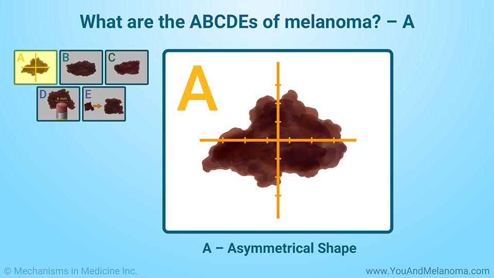 What are the ABCDEs of melanoma? – A
