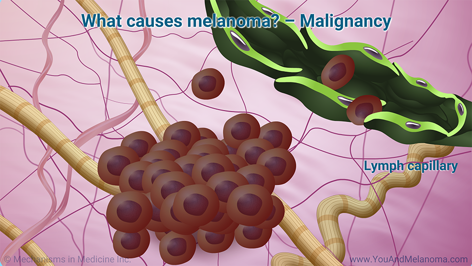 What causes melanoma?       – Malignancy