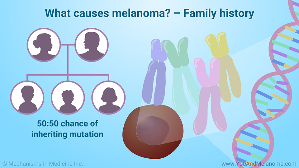 What causes melanoma? – Family history