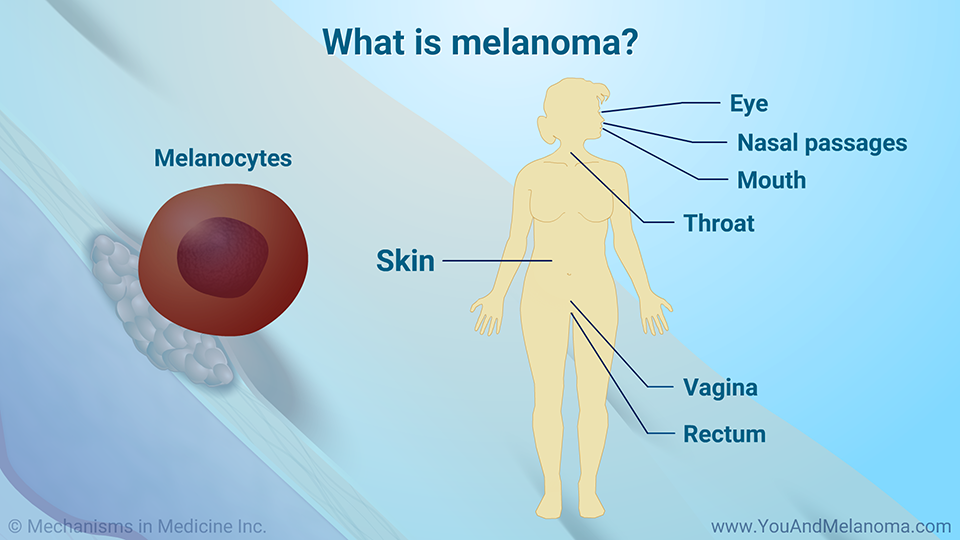 What is melanoma?