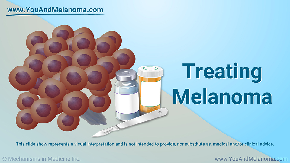 Treating Melanoma - Download Slide Show