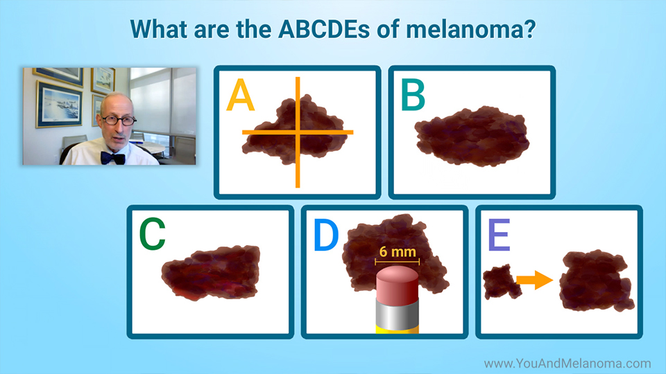 What are the signs and symptoms of melanoma?
