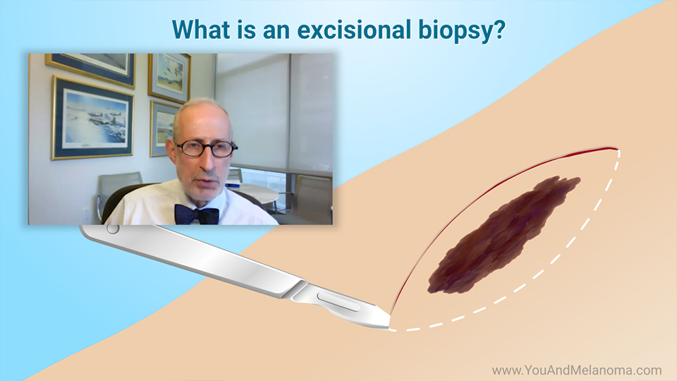 What kind of biopsies are used for melanoma?