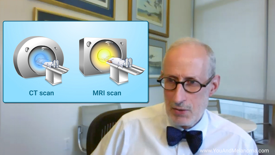 How are imaging tests used for melanoma?