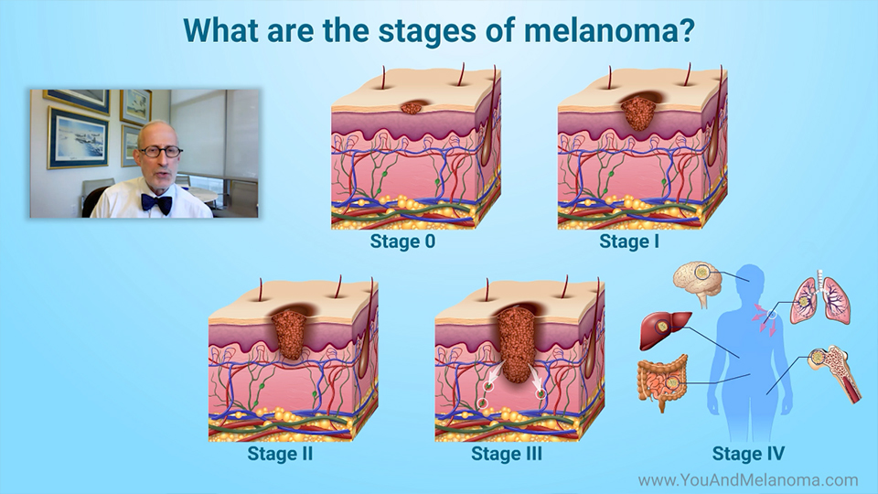 What are the stages of melanoma?