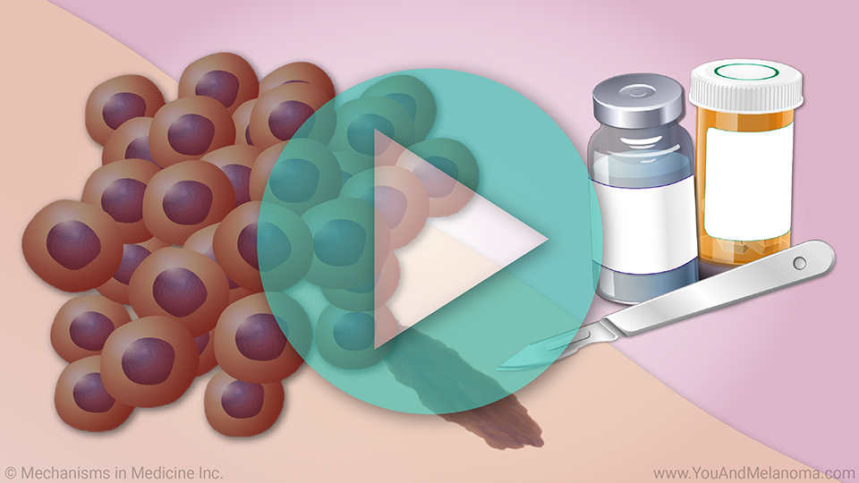 Animation - Treating Melanoma