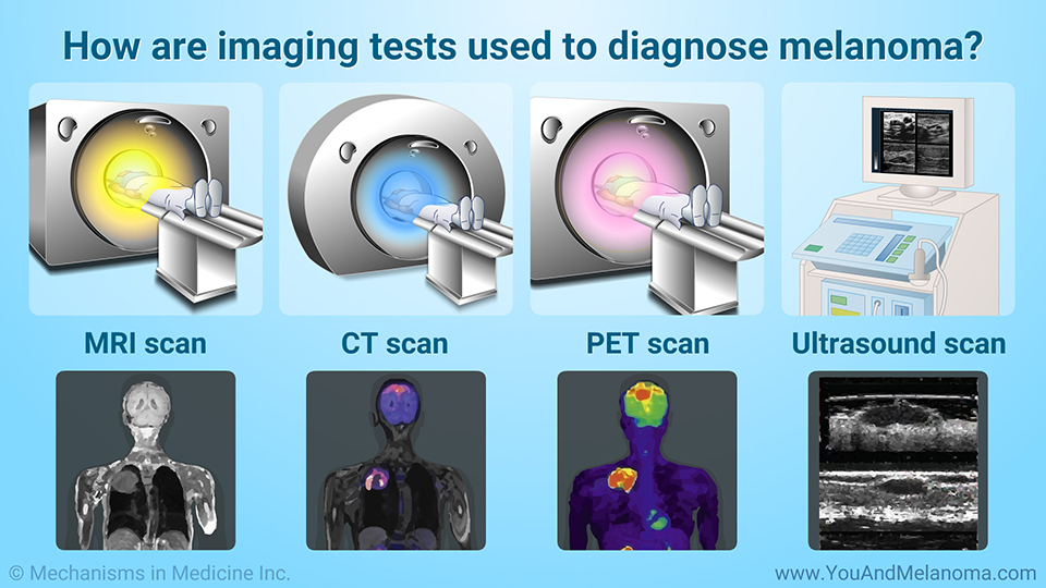 How are imaging tests used to diagnose melanoma?