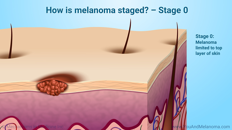 How is melanoma staged? – Stage 0