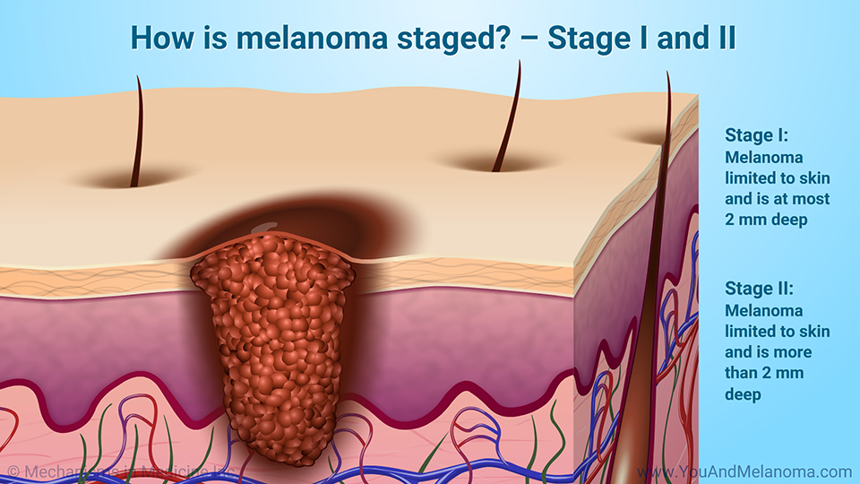 How is melanoma staged? – Stage I and II