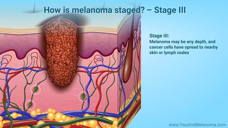 How is melanoma staged? – Stage III