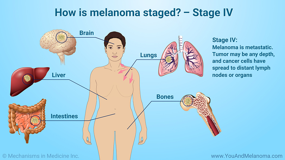 How is melanoma staged? – Stage IV