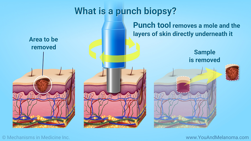 What is a punch biopsy?