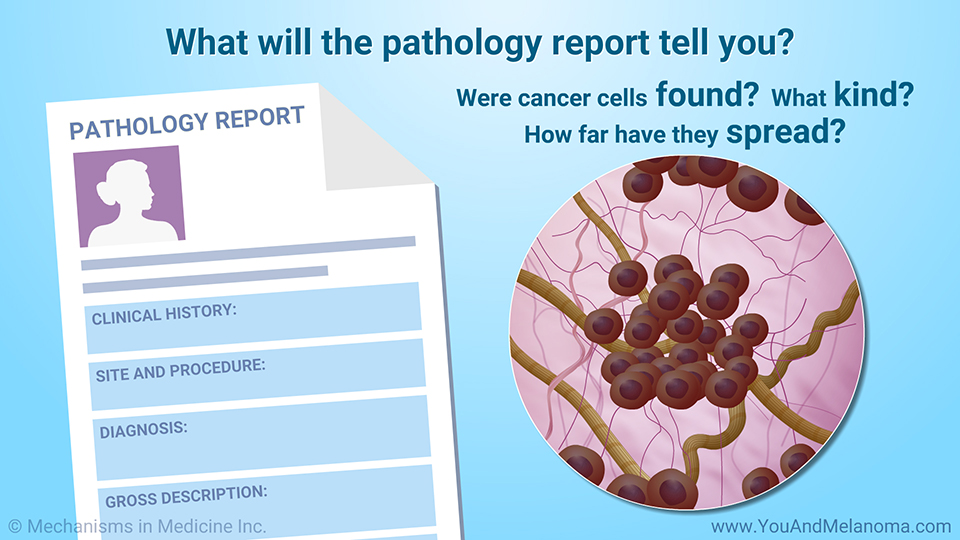 What will the pathology report tell you?