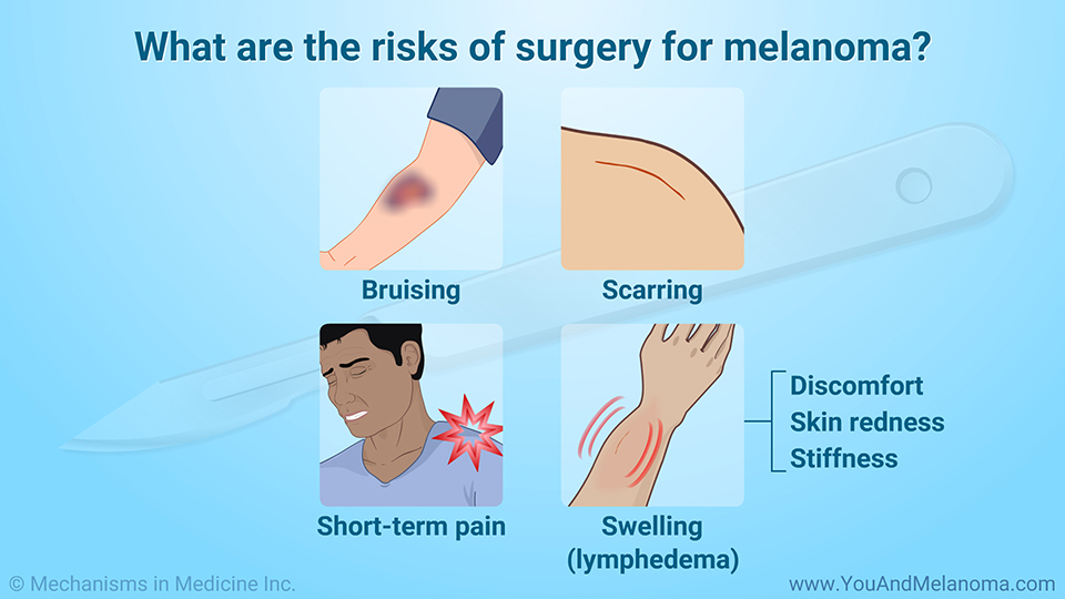 What are the risks of surgery for melanoma?