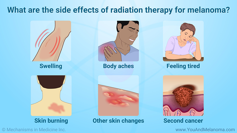 What are the side effects of radiation therapy for melanoma?