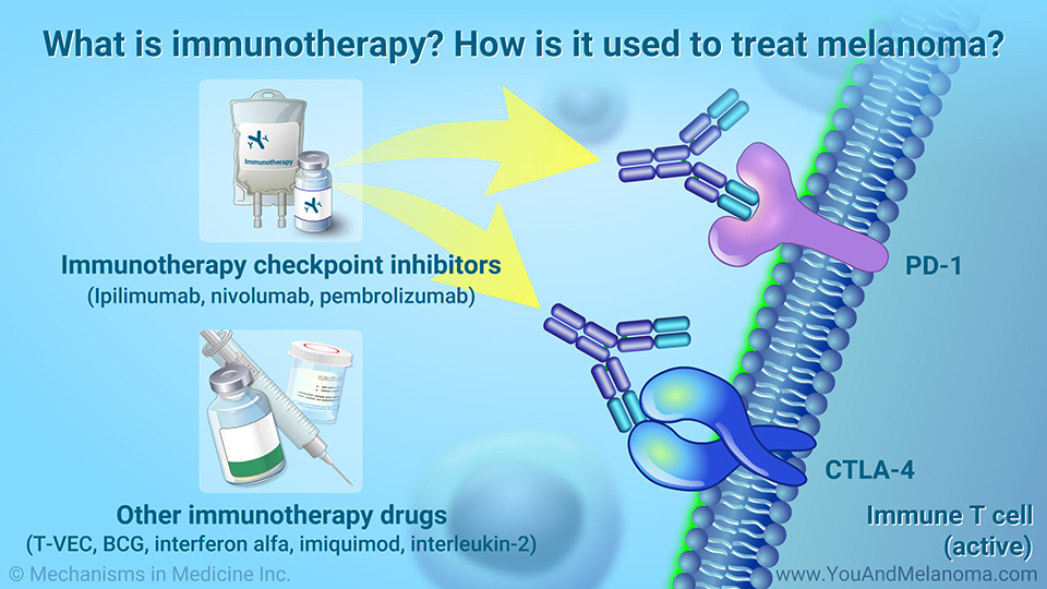 What is immunotherapy? How is it used to treat melanoma?
