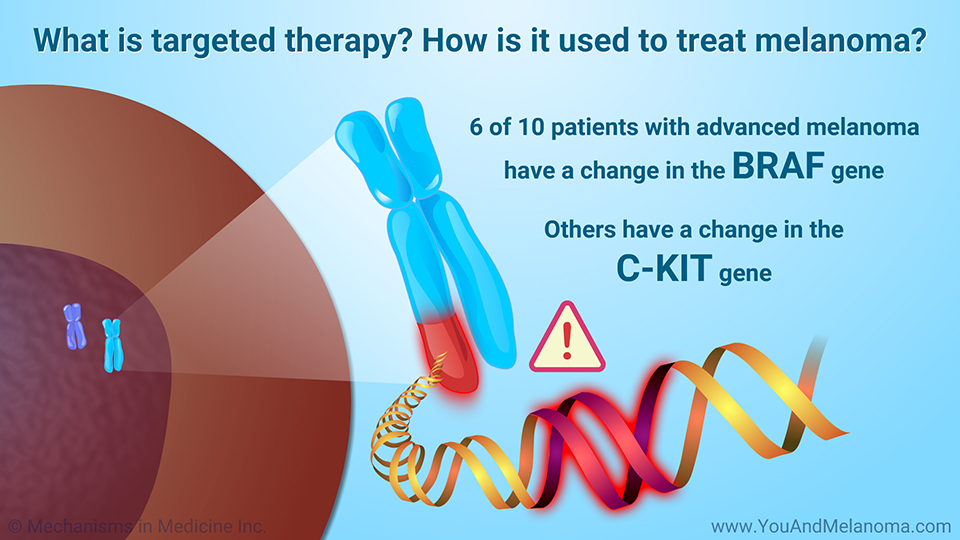 What is targeted therapy? How is it used to treat melanoma?