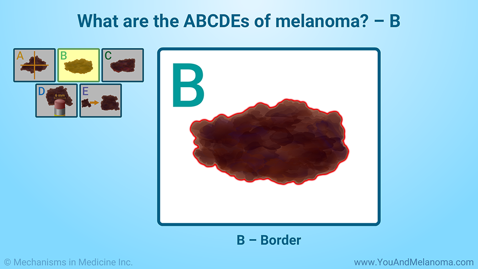 What are the ABCDEs of melanoma? – B