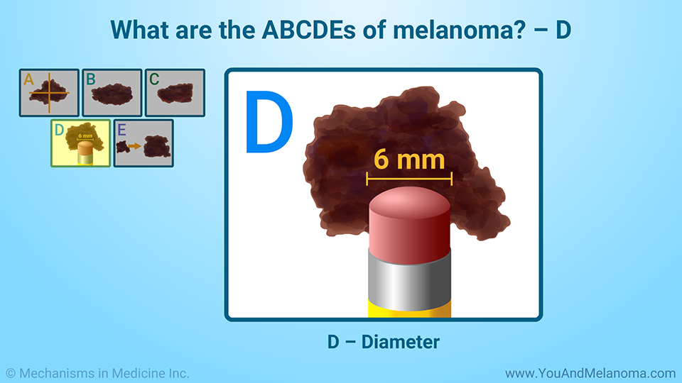 What are the ABCDEs of melanoma? – D