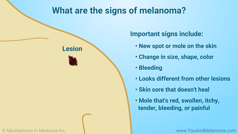 What are the signs of melanoma?