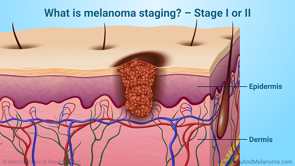 What is melanoma staging? – Stage I or II