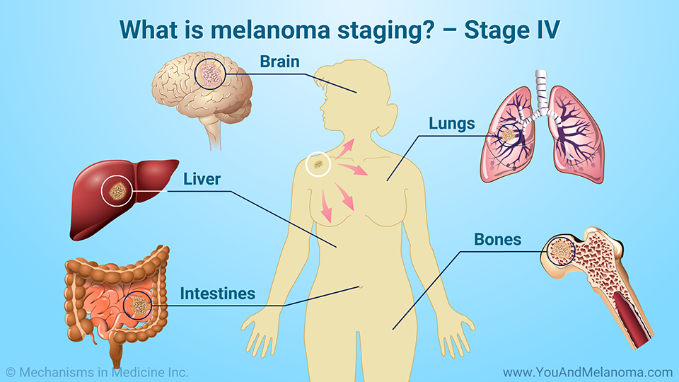 What is melanoma staging? – Stage IV